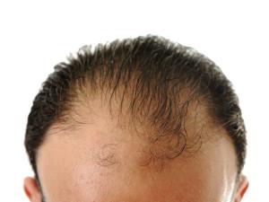 greffe-de-cheveux-etranger